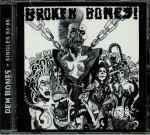 Dem Bones & Singles 83-86