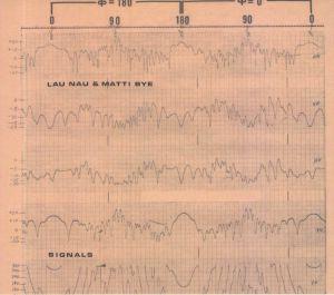 LAU NAU/MATTI BYE - Signals