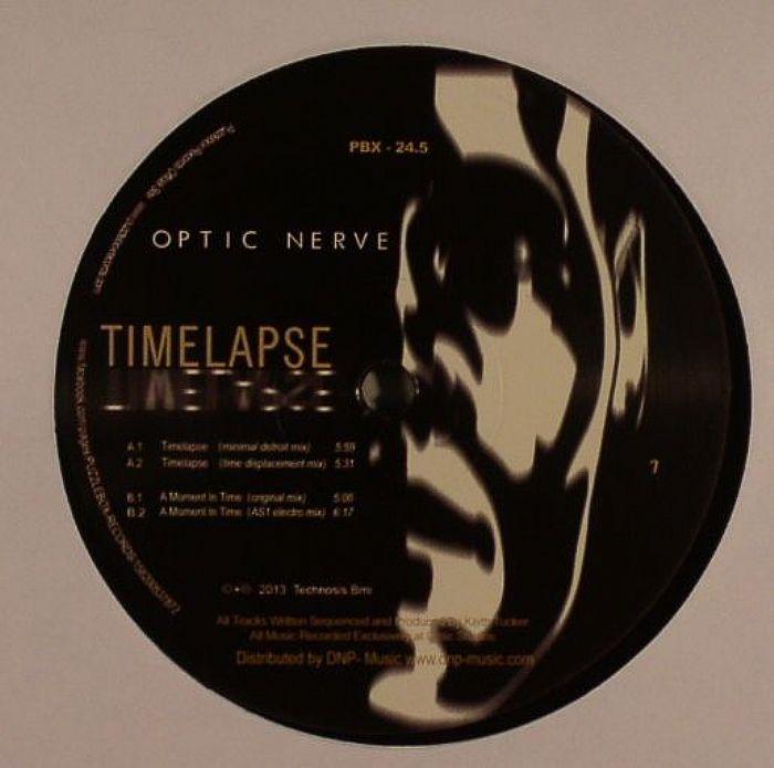 OPTIC NERVE - Time Lapse